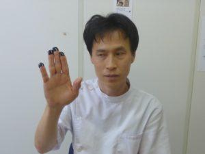 手の指先にマークを付けてある写真